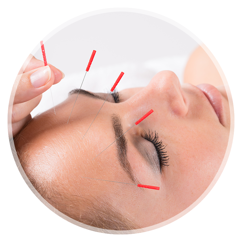 Louisville Acupuncture Clinic conditions treated with acupuncture