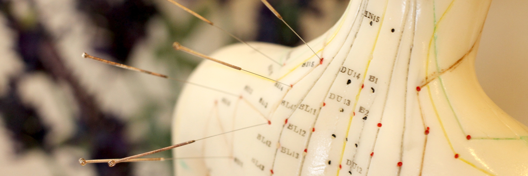 Conditions treated by acupuncture in Louisville, KY