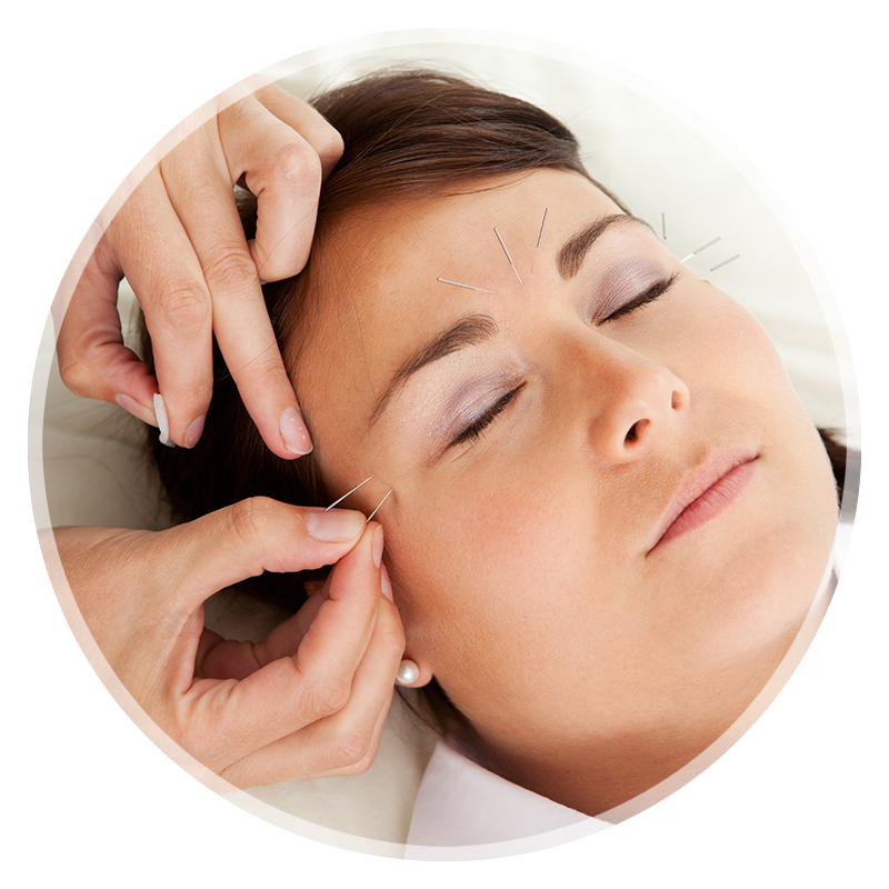 louisville acupuncture treatment for stress