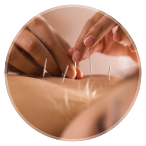 Is acupuncture painful?